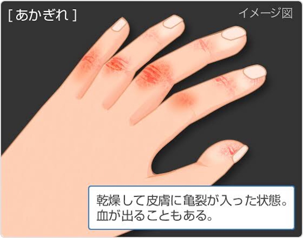 f:id:flat37takashi:20181222095553j:image