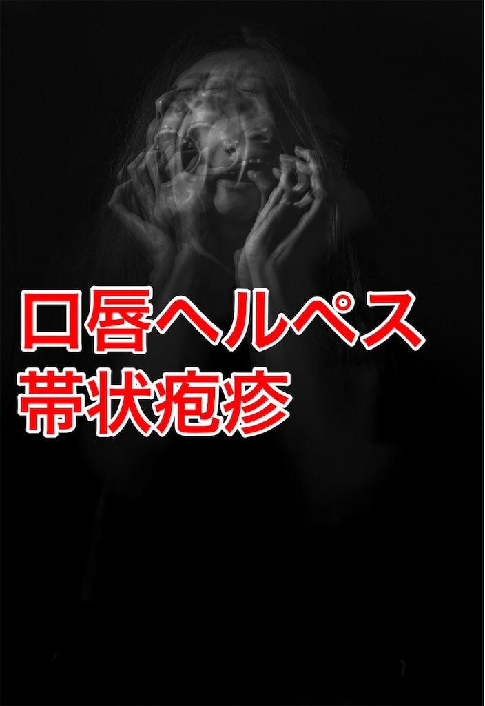 f:id:flat37takashi:20190910095011j:image