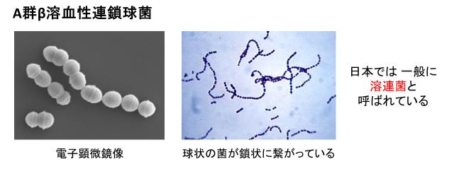 溶連菌の顕微鏡写真