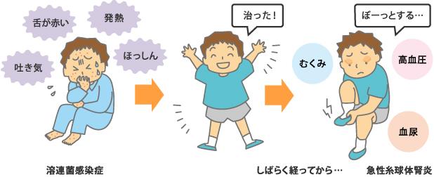 男の子が溶連菌感染症になり、治って元気になった後で糸球体腎炎の症状が出る様子のイラスト