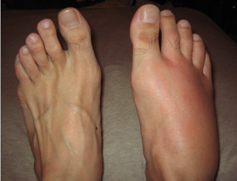 男性の右足背にできた蜂窩織炎の腫脹発赤の写真