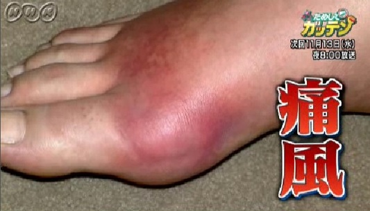 NHKためしてガッテンの右足にできた痛風の写真