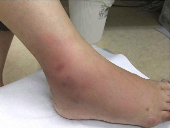 右足をブヨに刺されて赤く腫れあがっている写真