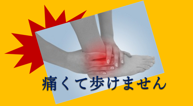 捻挫して痛む足首を両手でおさえている女性の手足の写真