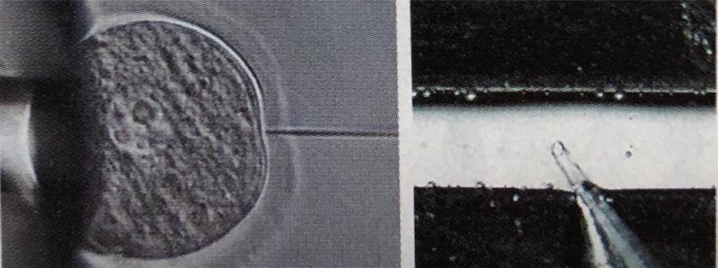f:id:freedoctor:20200131131201j:image