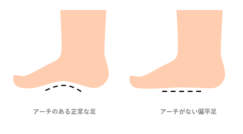 偏平足と土踏まずの形状