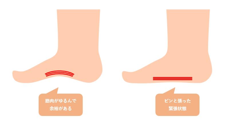 偏平足の筋肉と痛みの関係