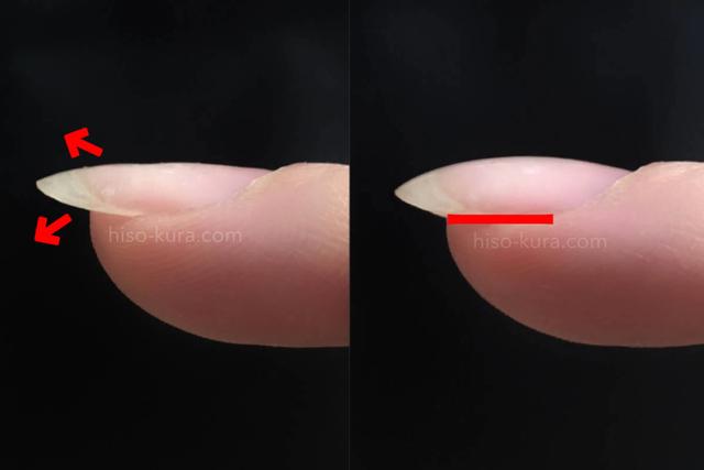 手の甲側へ伸びる反り爪、手のひら側へ伸びる鷲爪、再度が皮膚に食い込む巻爪。