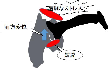 大腿骨頭の前方変位