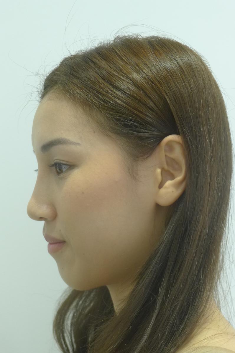 f:id:fujiikazuhisa:20191028135310j:plain