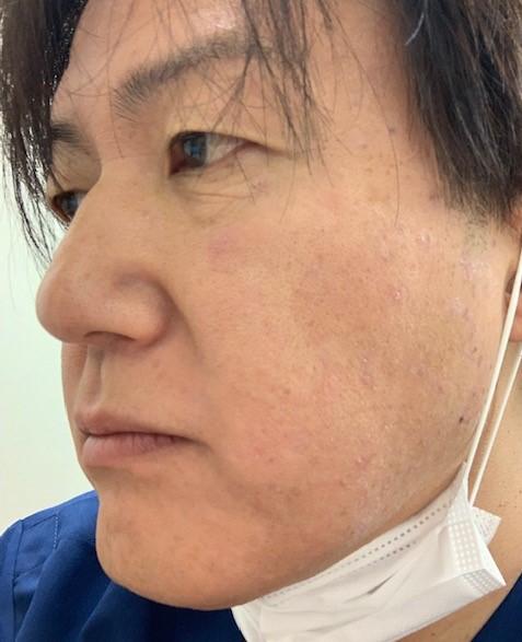 f:id:fujiikazuhisa:20191106110931j:plain