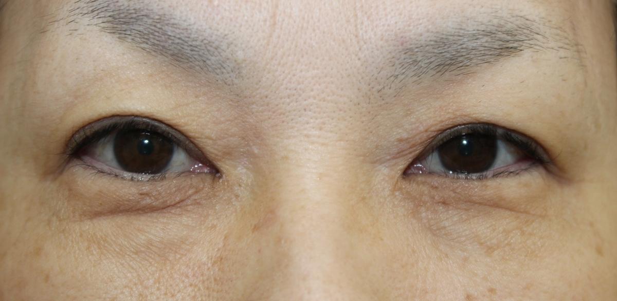 f:id:fujiikazuhisa:20200201162407j:plain