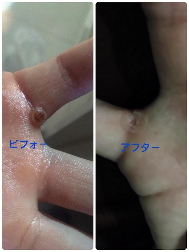 f:id:fujiko-aroma:20181204213826j:image