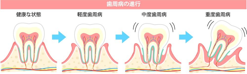 f:id:fujisan606:20180521222338j:plain