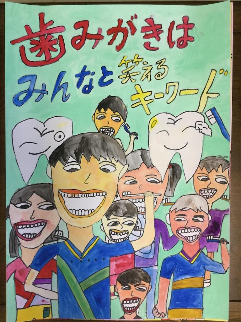 f:id:fukugawa-es:20180509165829j:image