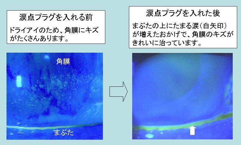 f:id:fukunagaganka:20170201212558j:plain