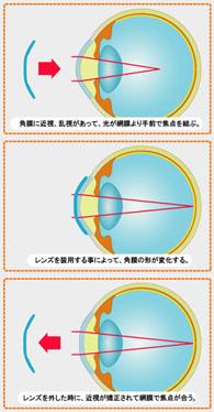 f:id:fukunagaganka:20170409204708j:plain