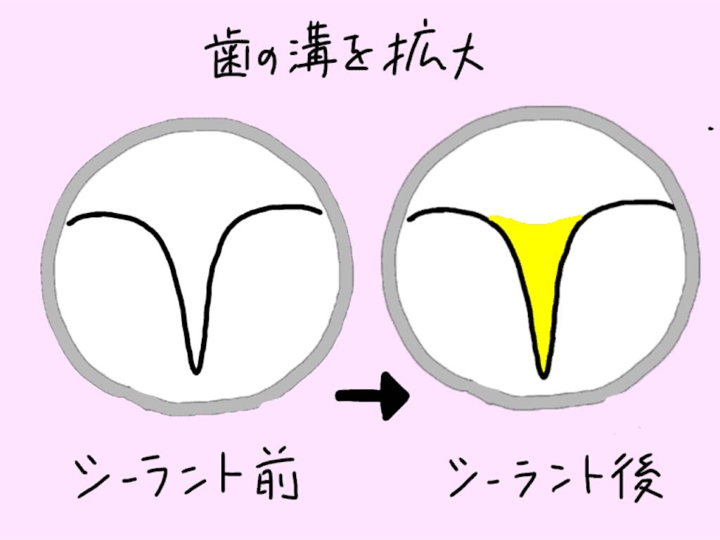 f:id:fumitotama:20200830142150p:image