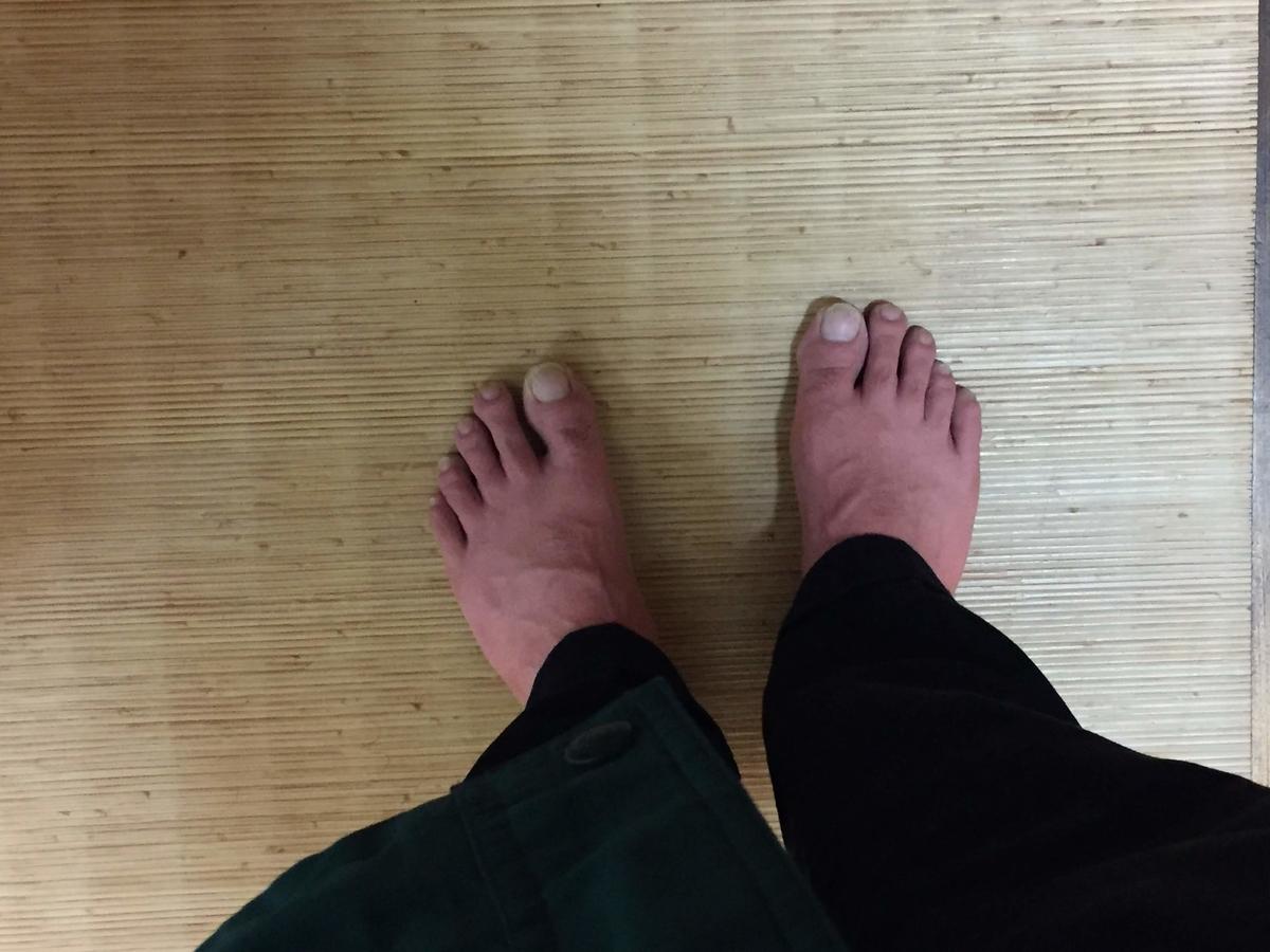真っ赤な足