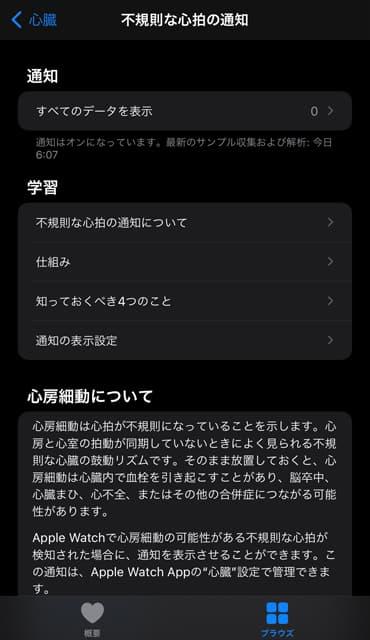 心電図のイメージ13