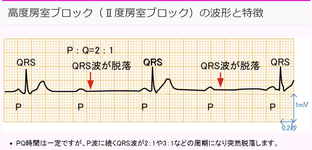 f:id:gazo-u:20200112204550p:plain