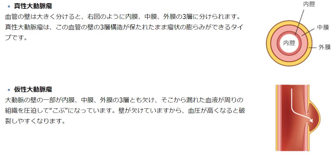 f:id:gazo-u2:20200415022711p:plain