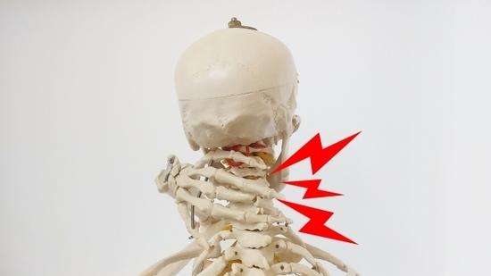 首の骨が痛い