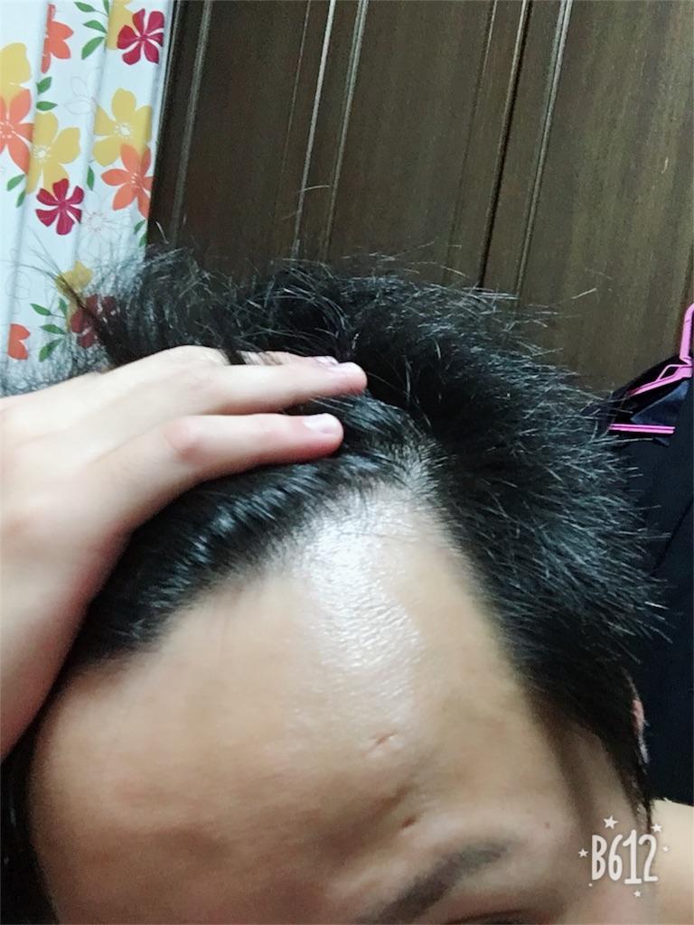 f:id:gichan21:20180529224602j:image