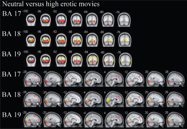 性的な映像による脳の血流の低下を示す画像