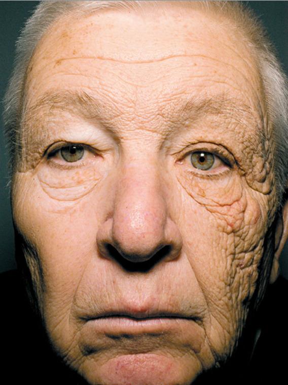 皮膚日射病になってしまった男性の画像