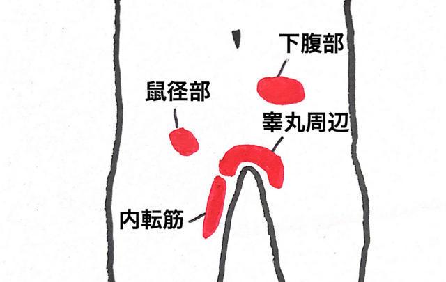 恥骨結合炎(グロインペイン症候群)で痛みが出る主な場所