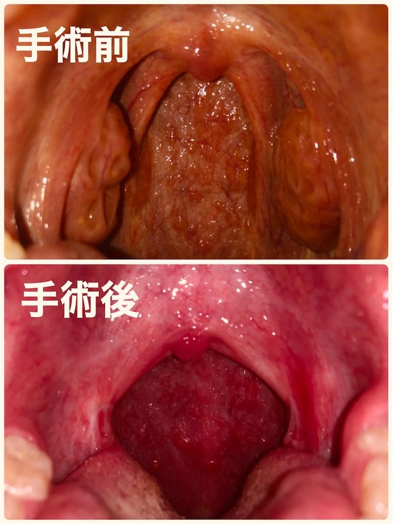 手術 費用 腺 扁桃