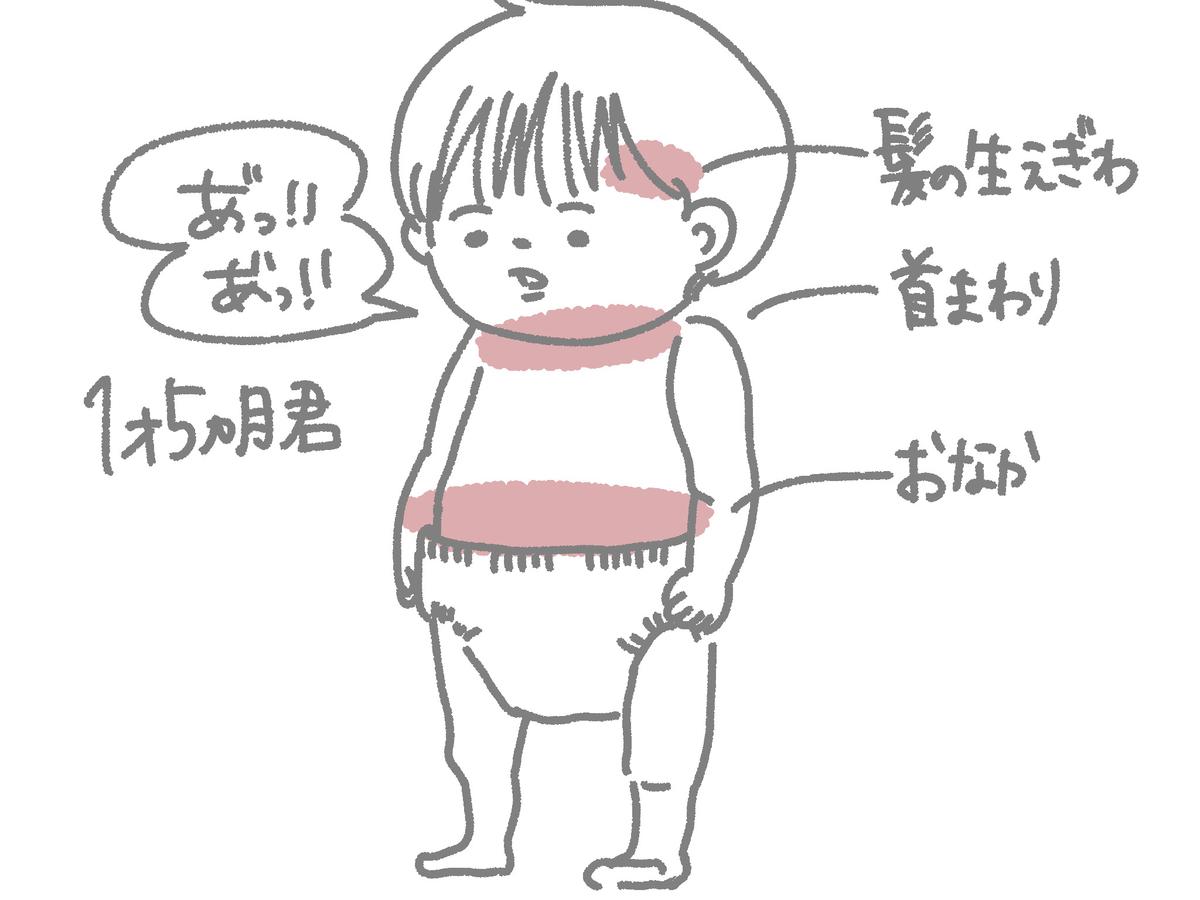 乳児湿疹が出た部位