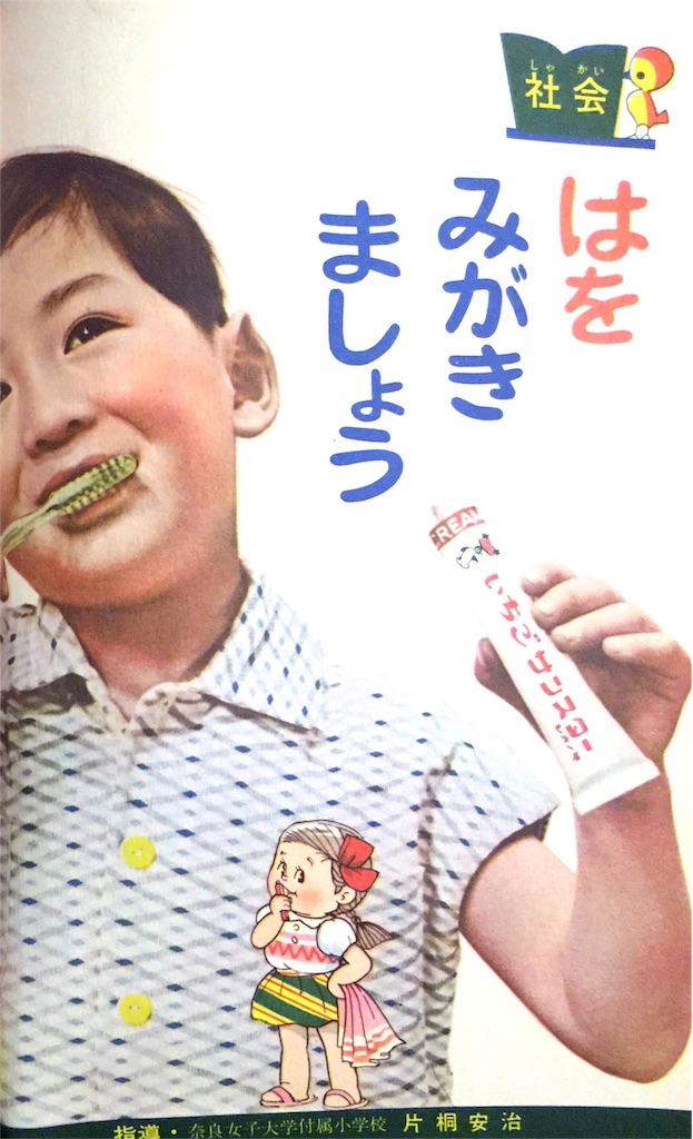 f:id:gumiyoshinobu:20170208172303j:image
