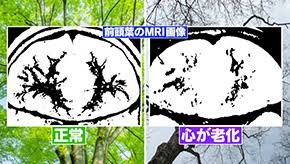 f:id:gunjix:20170915212112j:plain