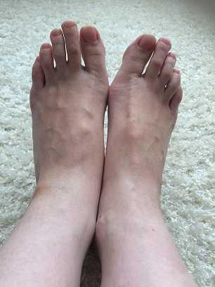 足首の太さ