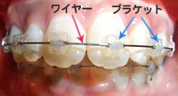 抜歯矯正 いつ 費用 期間 子供 インビザライン 歯を抜く矯正