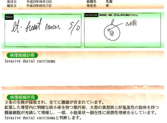 f:id:hagitani-naoko:20111003092959j:image