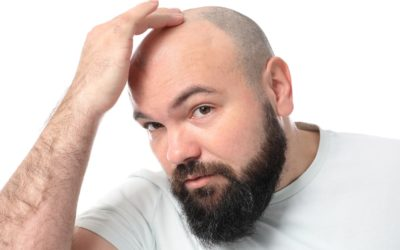 f:id:hairclinicagra:20191012151825j:plain