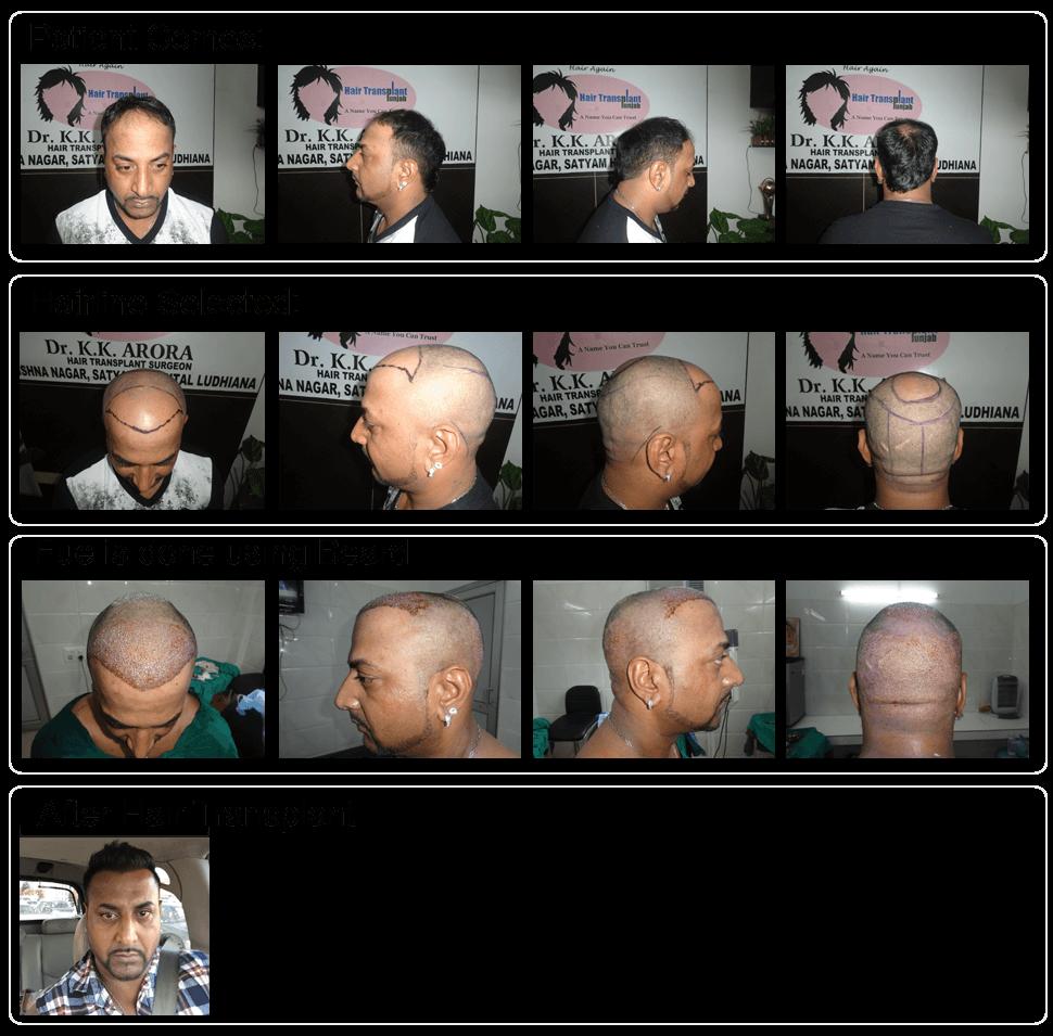 f:id:hairtransplantinaustralia:20170127152546p:plain