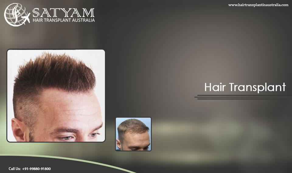 f:id:hairtransplantinaustralia:20170418162220j:plain