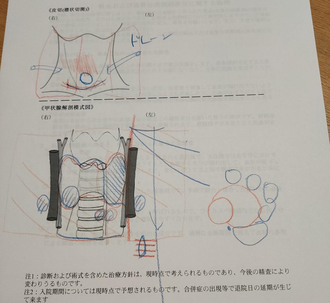 f:id:hakaiou20067:20200923234255j:plain