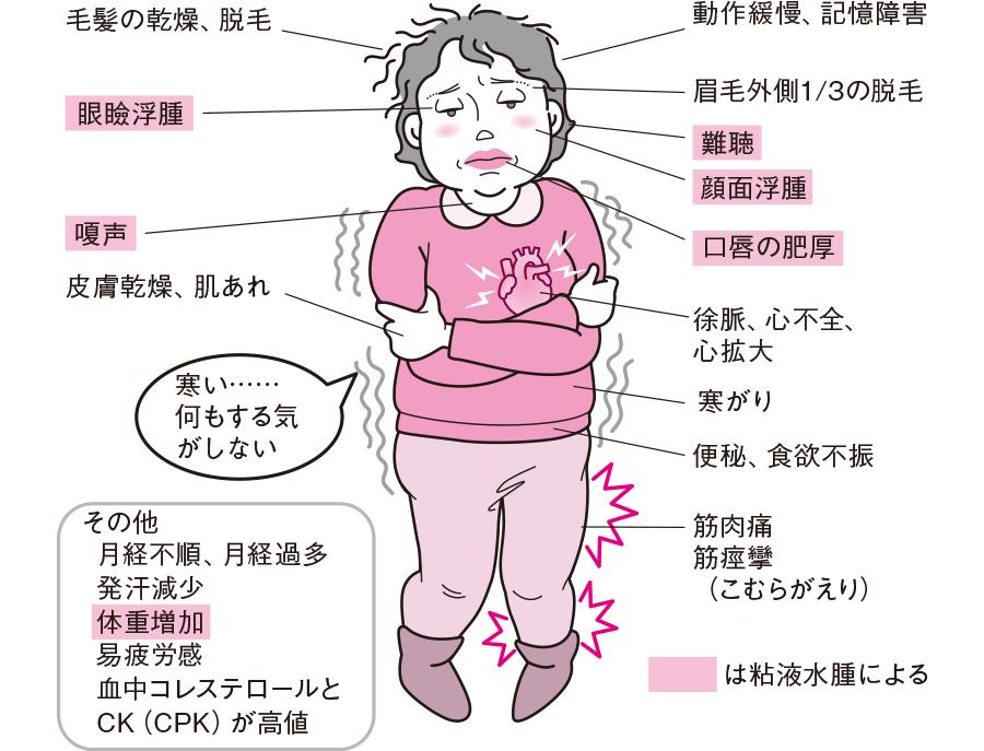 f:id:hakaiou20067:20210208155410p:plain