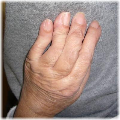 私の左手の写真