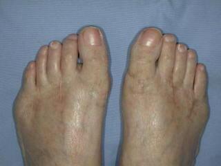 数年前に手術して綺麗になった両足指の写真
