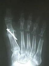 以前の手術で関節固定した親指のレントゲン写真