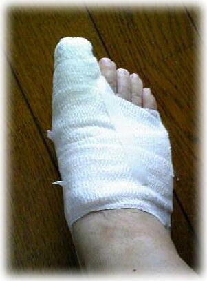 処置後のシーネで固定されて、包帯を巻かれた私の足先の写真