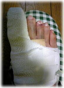 転んで二日目の足指、親指以外の指も内出血で青くなっている写真