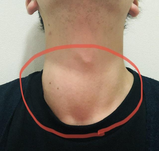 腫れた甲状腺