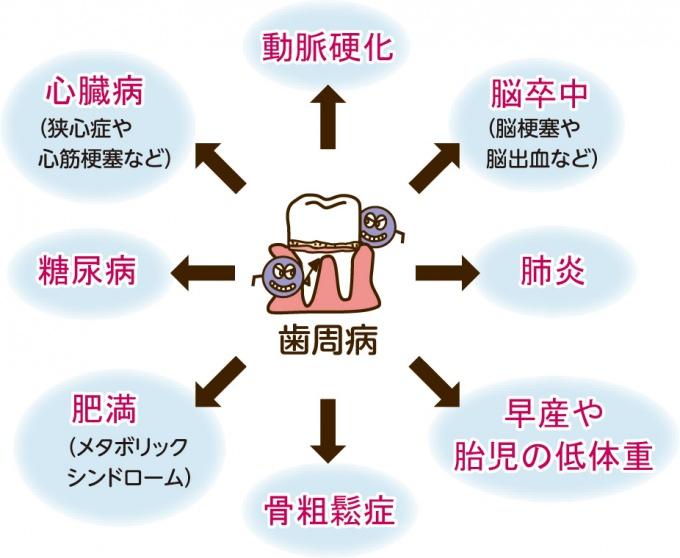 f:id:hamigaki8020:20161115011400j:plain